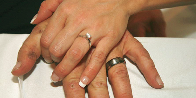 Todd Rose's wedding-day photo shows his acid-scabbed hand underneath that of his bride, Sarah.